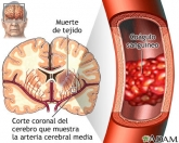 Como prevenir un ACV (Accidente Cerebrovascular)